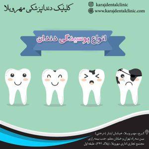 درمان پوسیدگی دندان