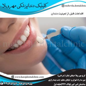 اقدامات قبل از لمینيت دندان