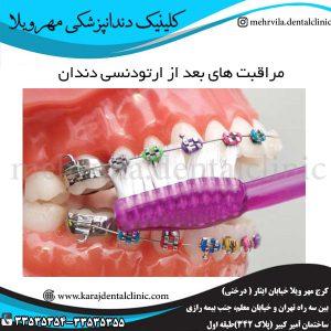مراقبت های بعد از ارتودنسی دندان