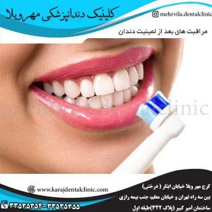مراقبت های بعد از لمینيت دندان
