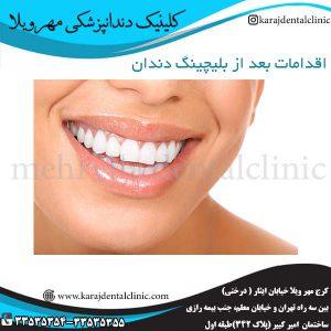 اقدامات-بعد-از-بلیچینگ-دندان