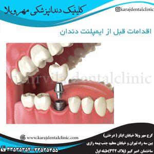 اقدامات قبل از ایمپلنت دندان