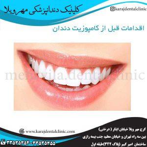 اقدامات-قبل-از-کامپوزیت-دندان