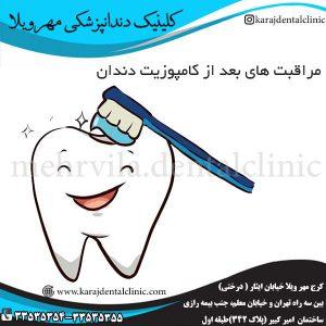 مراقبت-های-بعد-از-کامپوزیت-دندان