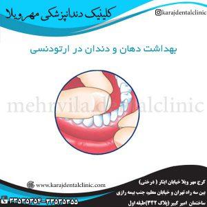 بهداشت دهان و دندان در ارتودنسی