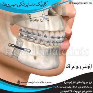 ارتودنسی و جراحی فک