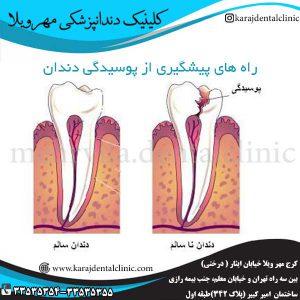 راه های پیشگیری از پوسیدگی دندان