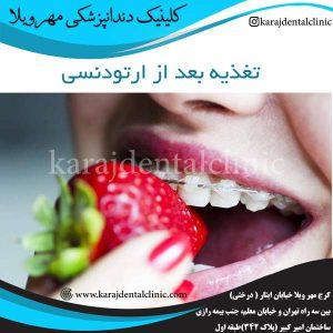 تغذیه بعد از ارتودنسی