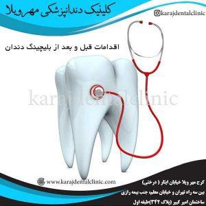 اقدامات قبل و بعد از بلیچینگ دندان