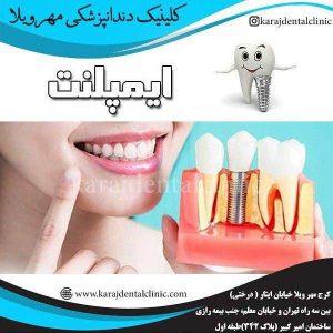 ایمپلنت دندان 2