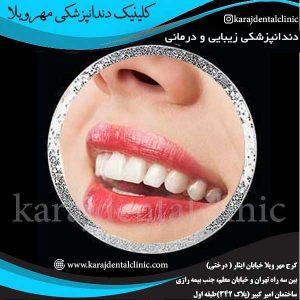 دندانپزشکی زیبایی و درمانی 2