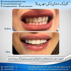 نکاتی درباره ی کامپوزیت دندان