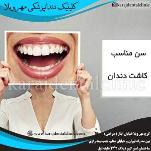 سن مناسب کاشت دندان