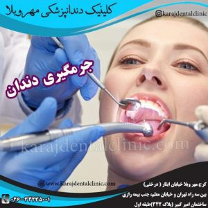 جرمگیری و بروساژ دندان