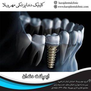 اقدامات قبل و بعد از ایمپلنت دندان