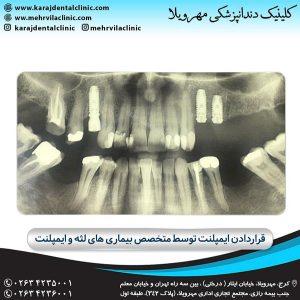 ایمپلنت دندان : آیا شما عزیزان نیز جزء آن دسته از افرادی هستید که دندان های خود را از دست داده اید و این عامل موجب از دست دادن یا کاهش ...
