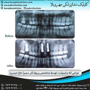 ایمپلنت و کلینیک دندانپزشکی کرج