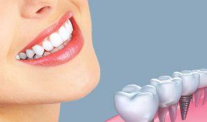 بهترین کلینیک دندانپزشکی کرج