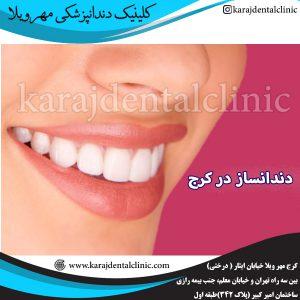 دندانساز در کرج