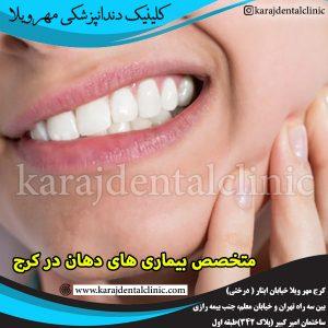 متخصص بیماری های دهان در کرج