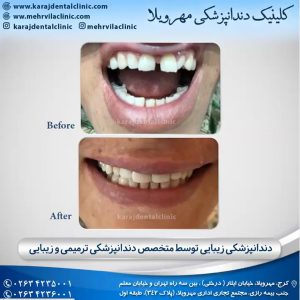 دندانپزشکی زیبایی و درمانی